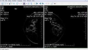 4-28-15 Mamogram SAFE