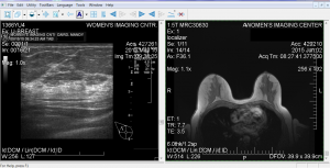 5-15-15 Right Ultrasound + 6-2 MRI